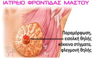 συμπτώματα καρκίνος μαστού, εισολκή θηλής, ιατρείο μαστού πατρα, φροντίδα μαστού, χαβελές ιωάννης χειρουργός μαστού μαστολόγος